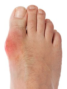 photogallery-foot-health-08_full
