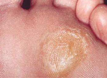 get-rid-of-calluses-on-feet-fast